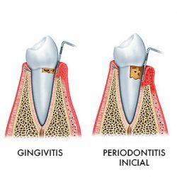 Les malalties periodontals