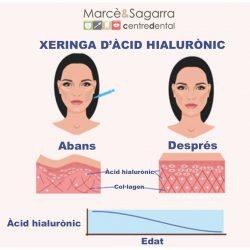 Harmonització orofacial amb àcid hialurònic
