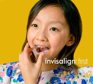 Invisalign First ortodòncia invisible per a infants
